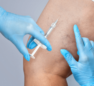 Microsclerotherapy Course